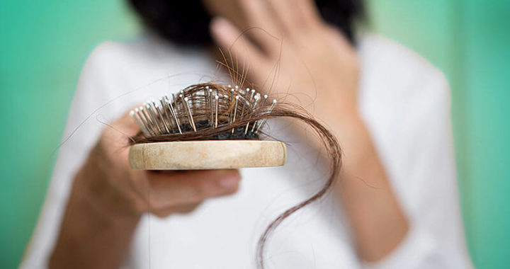 Hair Loss – Causes and Treatments